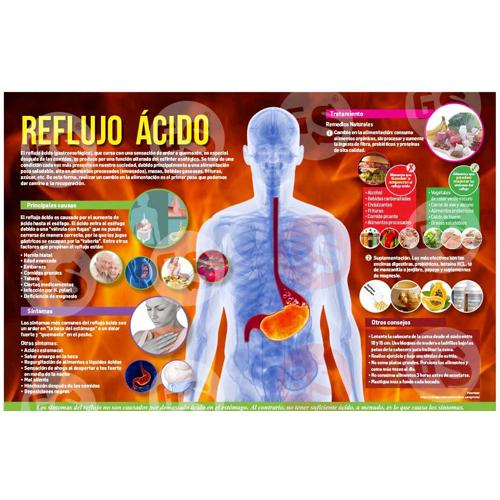 Infografía Reflujo ácido
