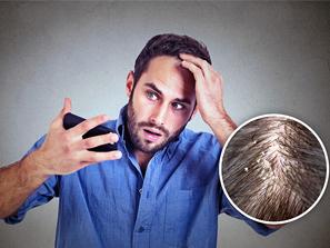 Caspa: Prevenga y trate este antiestético problema