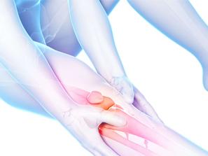 Diez pasos para combatir la artritis