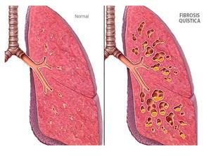 Fibrosis quística  una alteración que se puede manejar con alimentación
