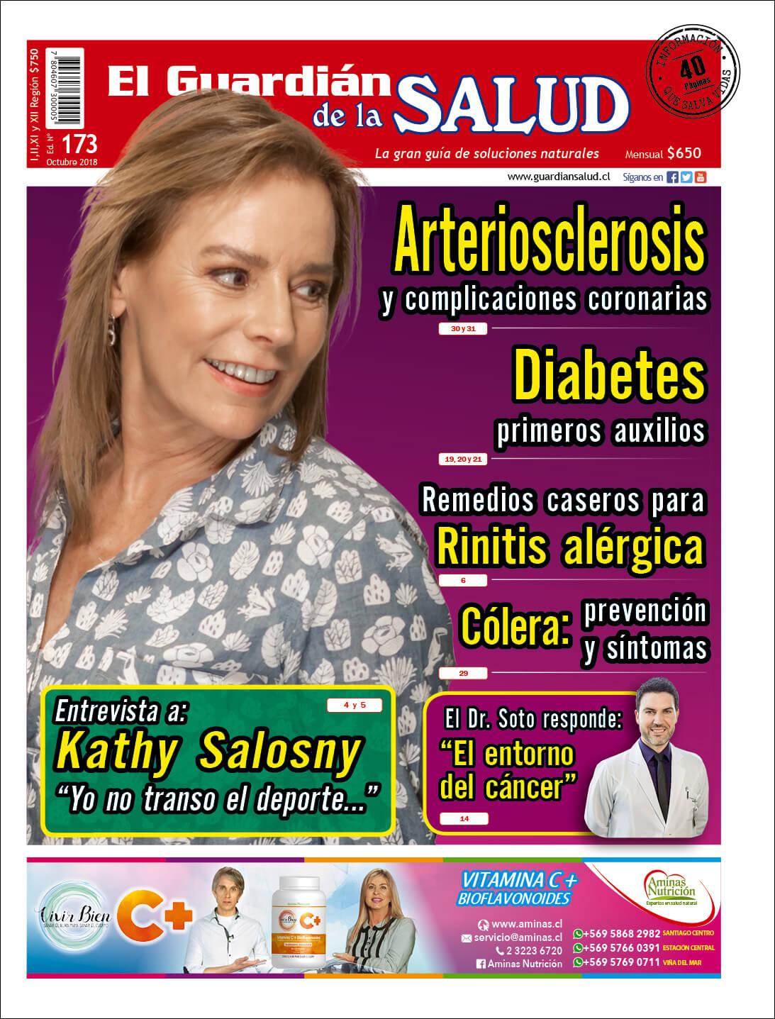 Edición 173 Arteriosclerosis y complicaciones coronarias – El Guardián de la Salud Digital
