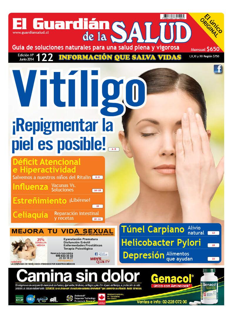 Edición 122 Vitíligo – El Guardián de la Salud Digital