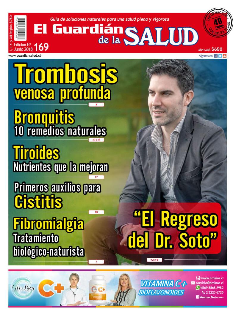 Edición 169 Trombosis venosa profunda – El Guardián de la Salud Digital